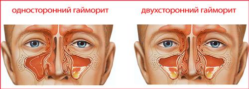 лечение двухстороннего гайморита