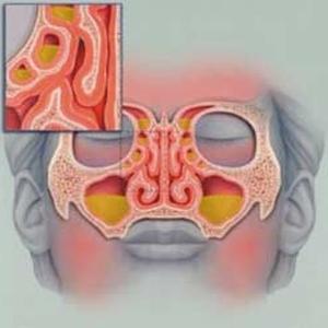 лечение катарального гайморита