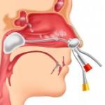 Лечение гайморита методом кукушки