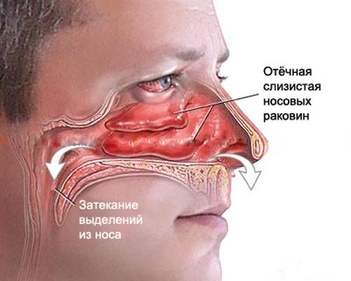 allergy_rhinitis1