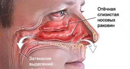 Подробное описание симптомов вазомоторного ринита