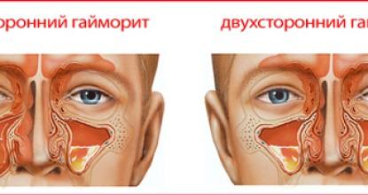 Лечение двустороннего гайморита